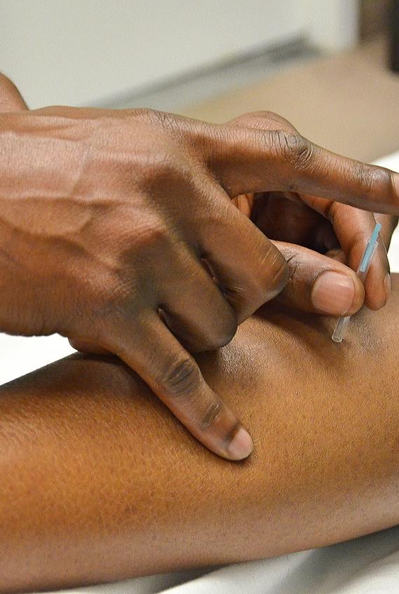 Curso de Punción Seca: Tratamiento de los puntos gatillo miofasciales